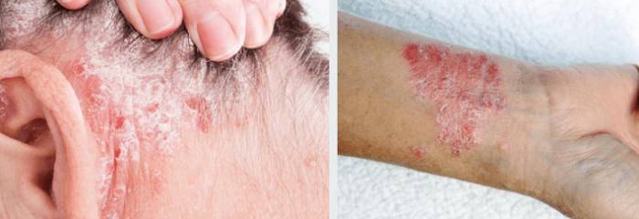 Лечение Псориаза Клотримазолом