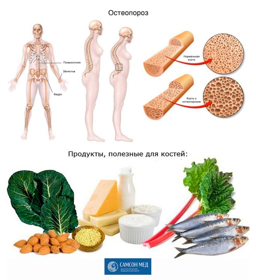 Лечение Артрита Коленного Сустава Лекарства