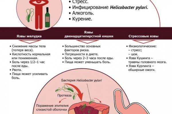 """Боль в желудке после пищи... Необутин при болях в желудке http://my-telo.ru/xen/"""" - карточка пользователя ijwostgqyb в Яндекс.Ко"""