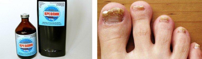 Средство от грибка ногтей своими руками 152