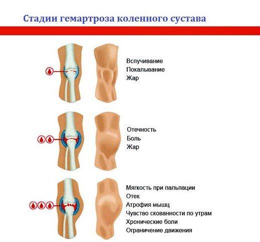 лечение суставов от остеоартроза