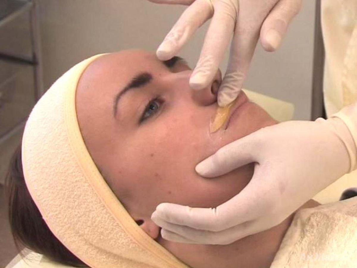 Эпиляция над губой - как убрать усики над губой 50