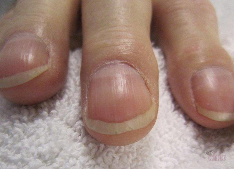 Выпуклые ногти у мужчин