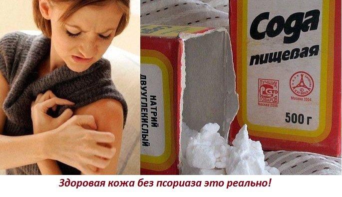 Псориаз Беременность