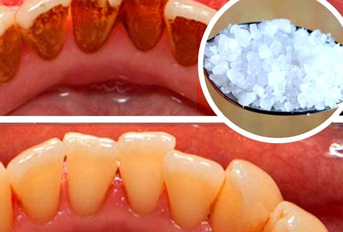 Чистка от налета зубов в домашних условиях 676