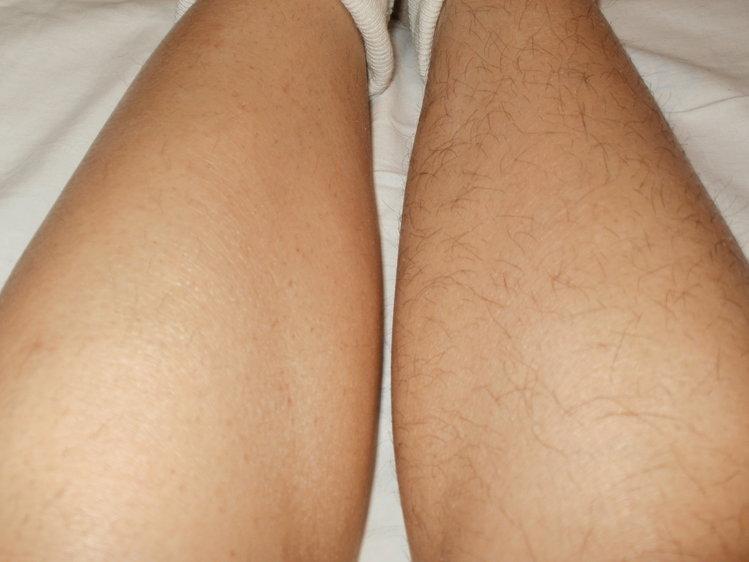 Как сделать что бы убрать волосы на ногах