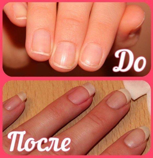 Как сделать так чтобы ногти быстрее росли в домашних условиях