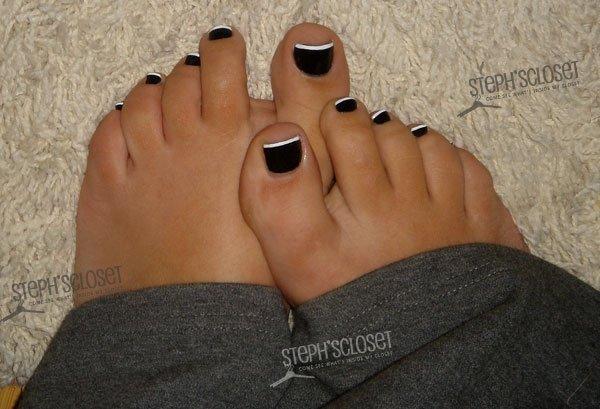 Тёмные ногти ног