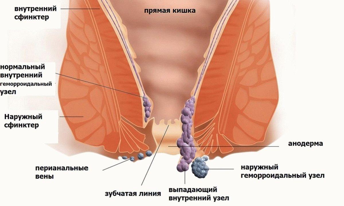 Лечение Геморроя Женщин Отзывы