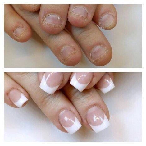 Ногти грызуна до и после