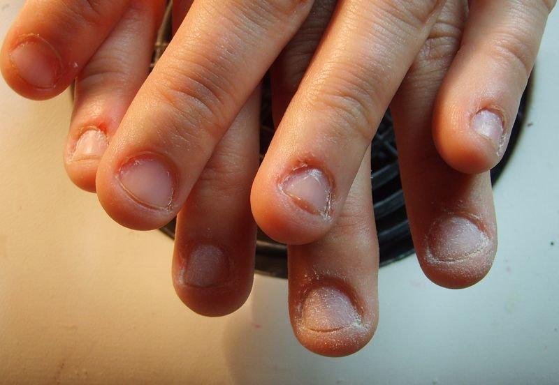 Как из некрасивого ногтя сделать красивый