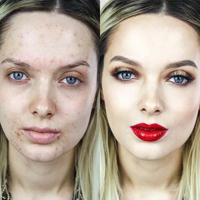 Как сделать кожу белой а не красной
