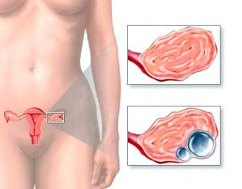 Киста яичника у беременной женщины 59