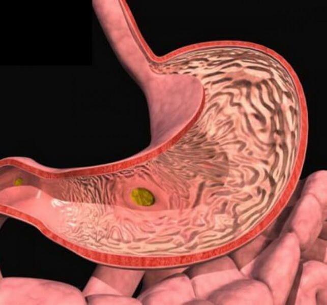 Лечение гастрита, язвы желудка народными средствами http://bazaprikolov.ru/Pejc/ Лапчатка прямостоячая (калган) при проблемах с