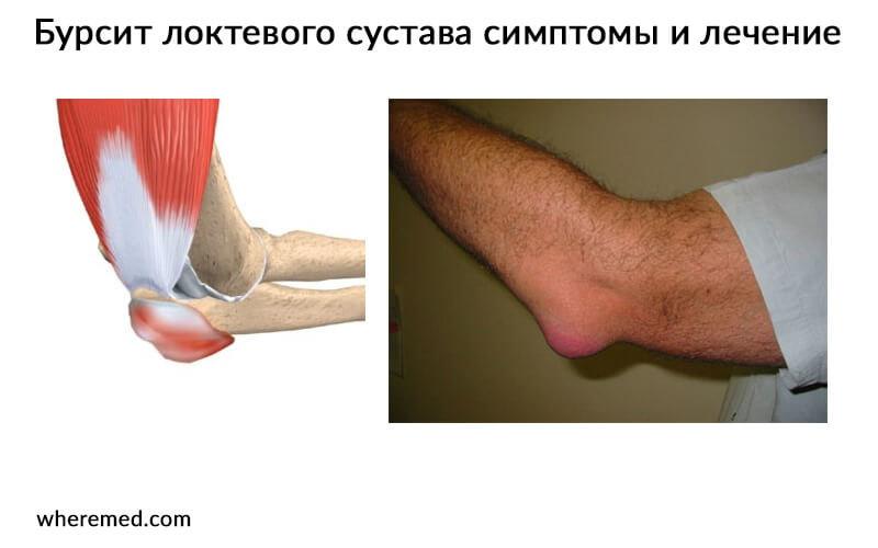 поиск, поставщики артрит остеоартроз чем лечить Носков
