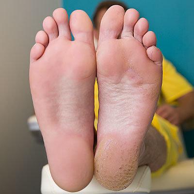 Педикюр на ногах болезни