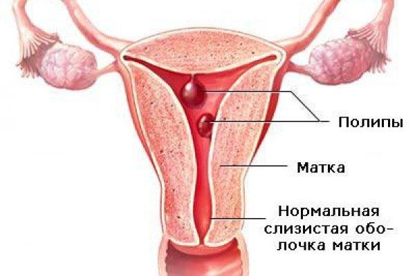 Миома матки форум. Лечение, форум по гинекологии - 24 forum /... В апреле 2005 года у меня была обнаружена миома матки ( матка 5