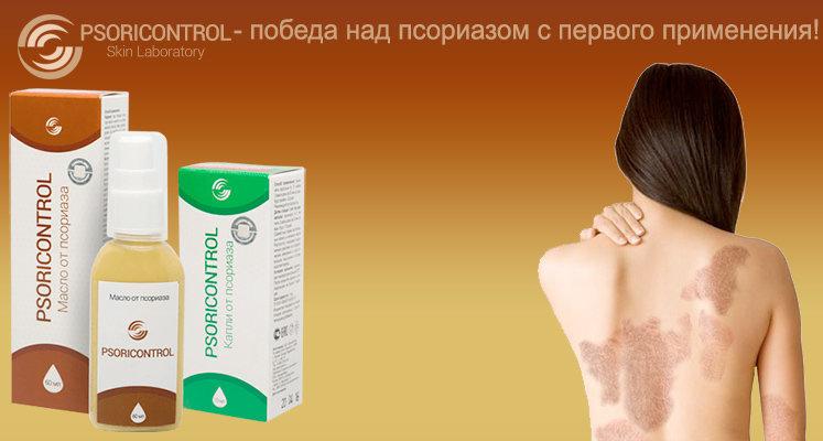 Кожное Заболевание Псориаз