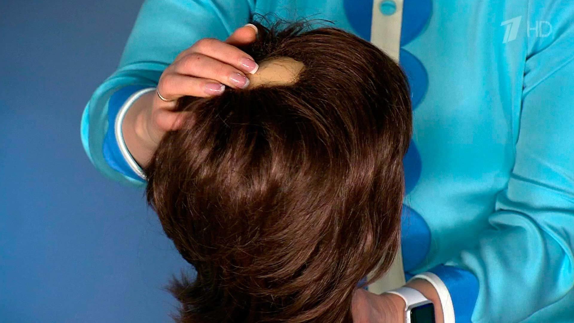 Волосы выпадают в домашних условиях вылечить