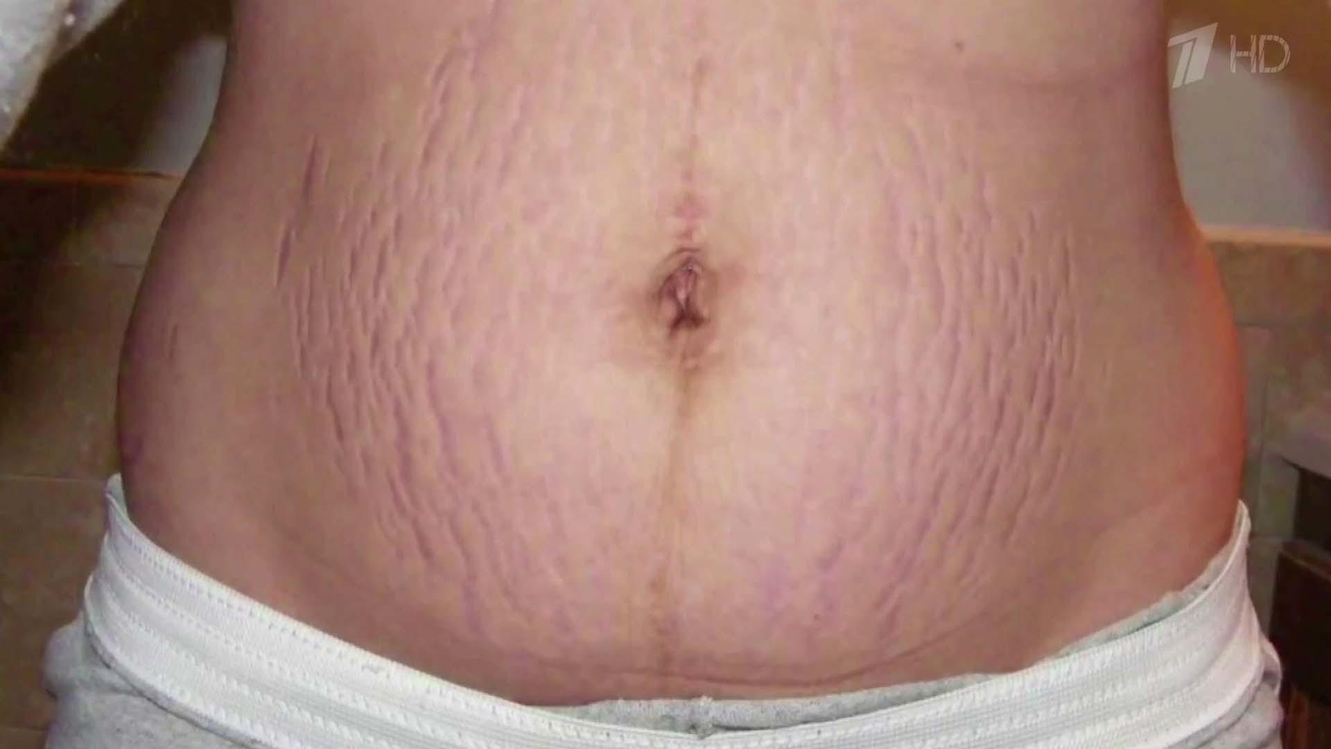 Растяжки после беременности