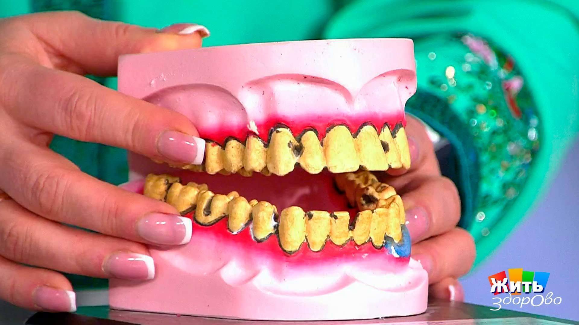 Начали рушиться зубы