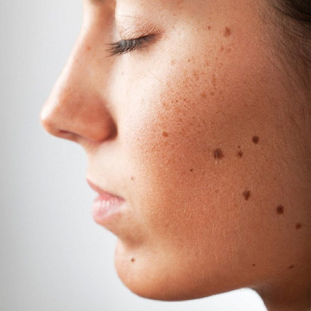 Brown patch on face pictures