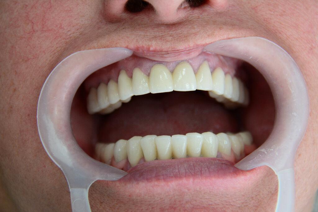 стоматологическая клиника — Медсервисинвест — Минск, фото №10