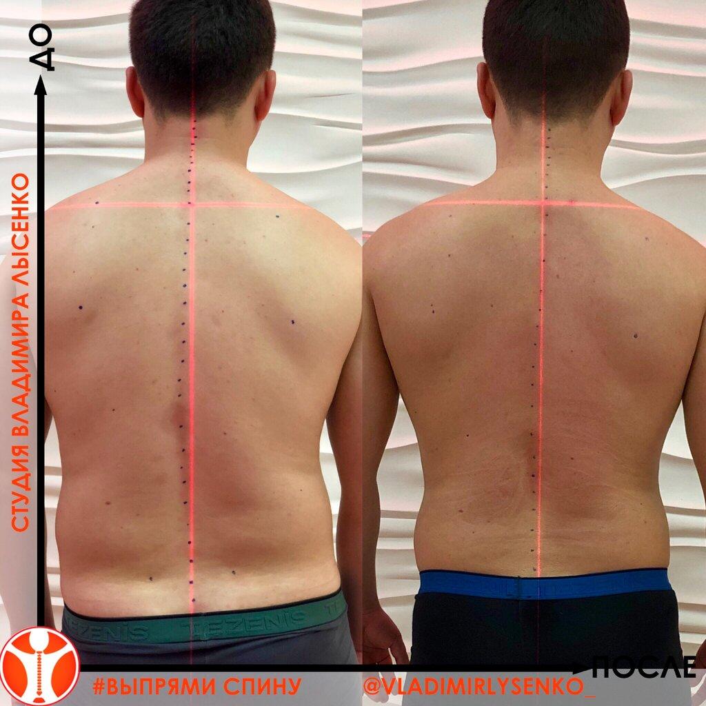 редактор фото для выравнивания спины чехол