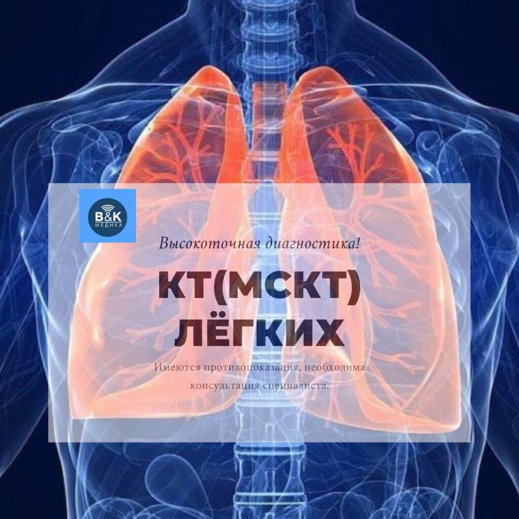 диагностический центр — МРТ, КТ, УЗИ - центр БиКей Медика — Красноярск, фото №2