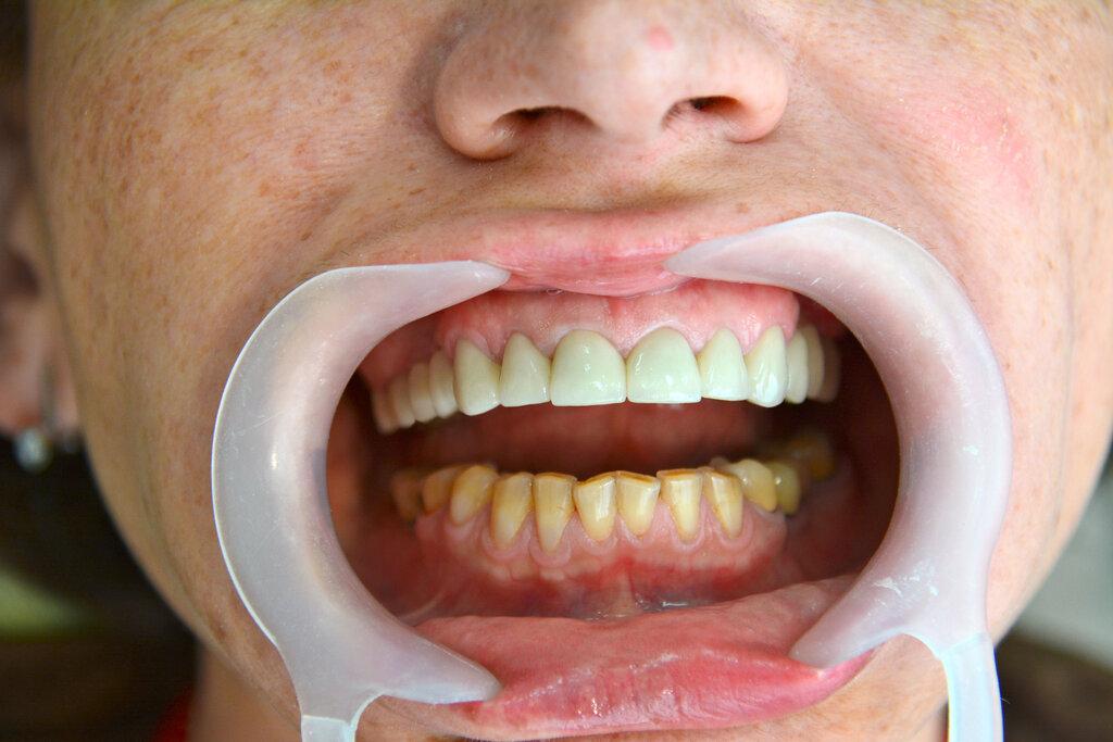 стоматологическая клиника — Медсервисинвест — Минск, фото №7