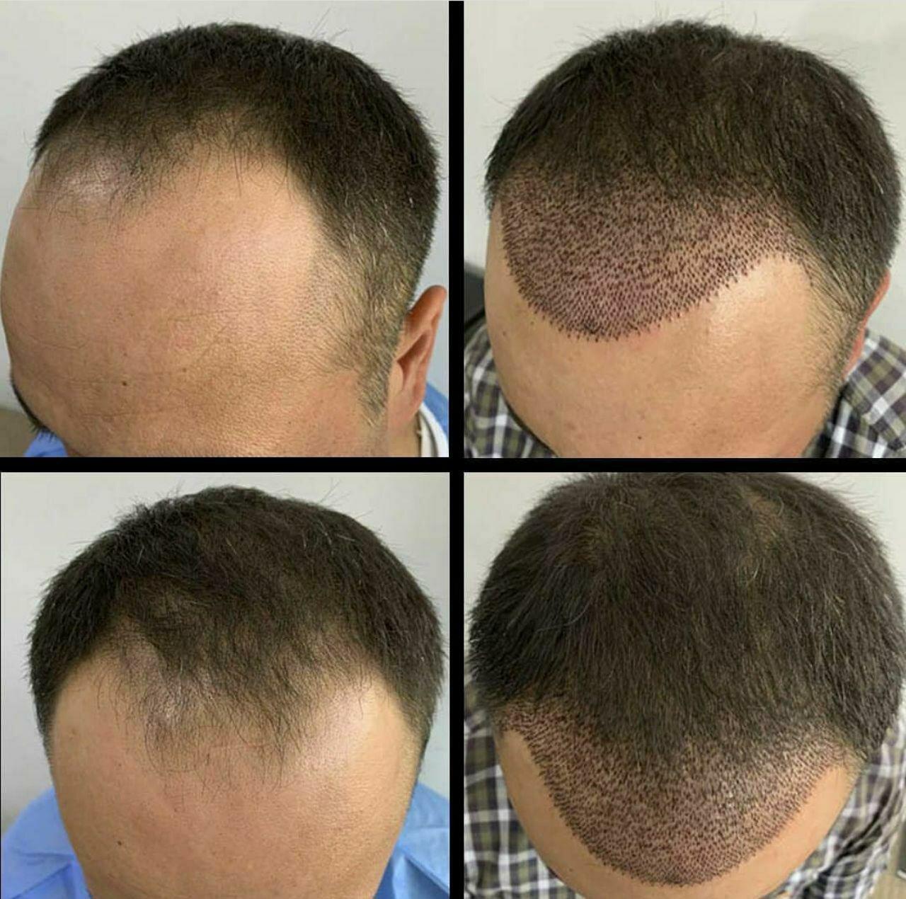 случае бочкиным фото до и после пересадки волос года этот