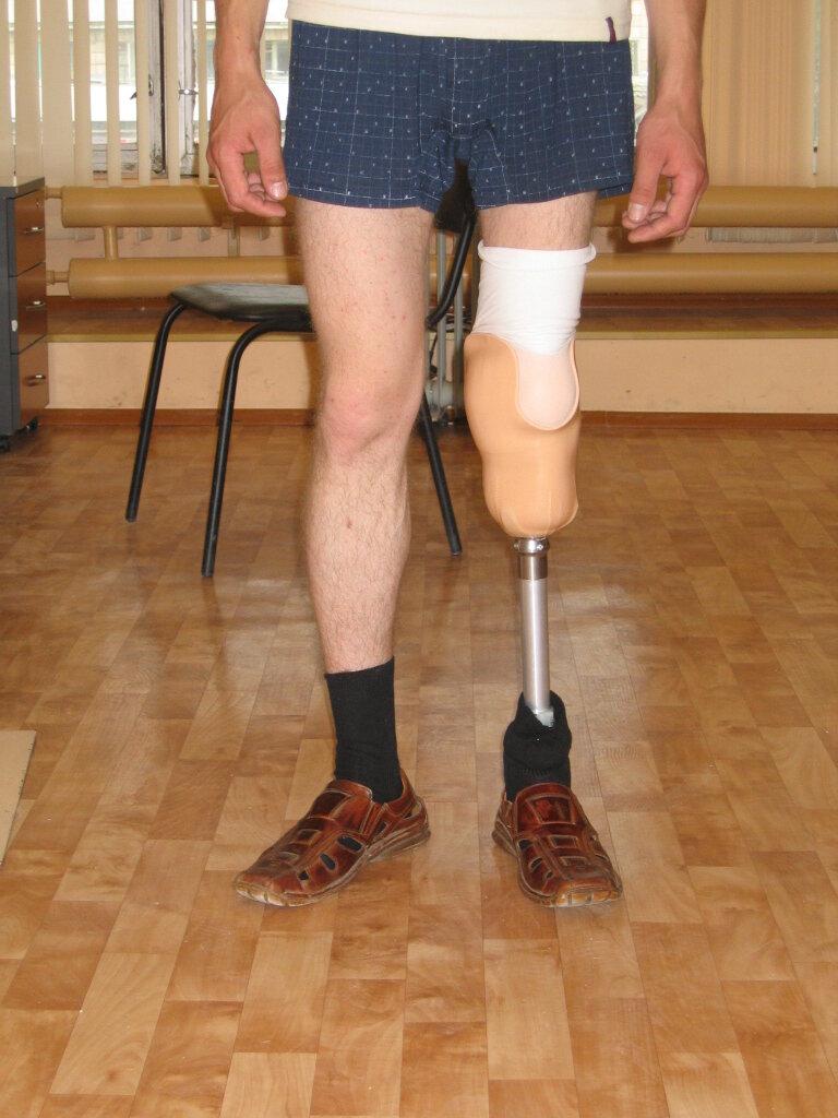каждый человек фотографии с протезом ноги левой если стакан классически
