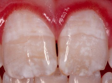 dental caries the mild to moderate The severity of dental caries among a group of 22-23 years old adults in relation to salivary flow rate (mild, moderate and severe) according to (dmfs.
