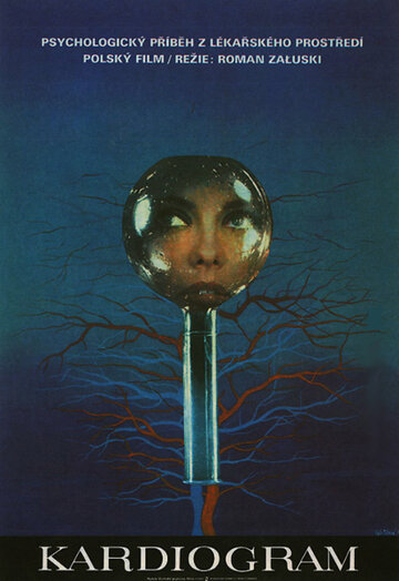 Кардиограмма (1970)
