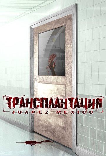 Трансплантация (2005)