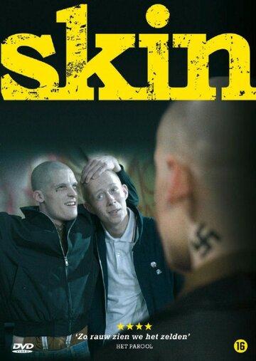 Скин (2008)