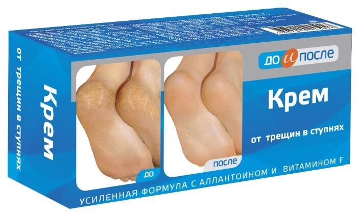 До и После Крем от трещин в ступнях