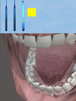 Разработчик - Разработка игры-симулятора стоматолога на Unity, 0