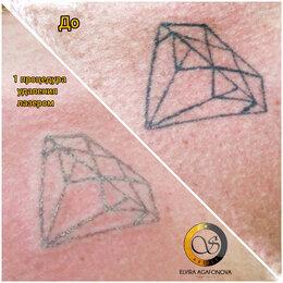 Спорт, красота и здоровье - Лазерное удаление тату и некачественного перманентного макияжа , 0