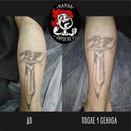 Спорт, красота и здоровье - Лазерное удаление татуировок, 0