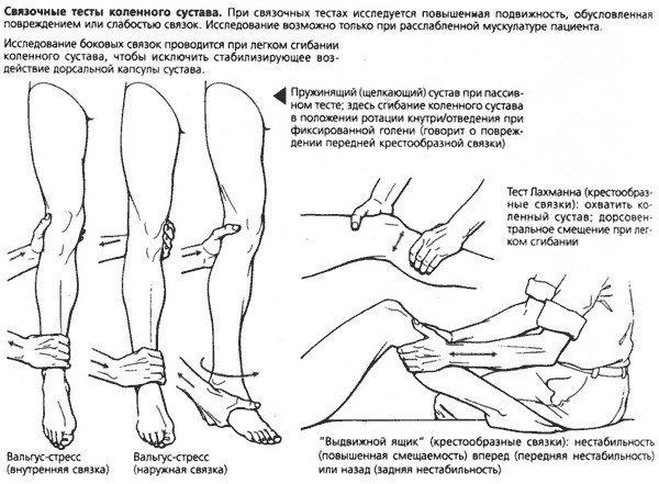 Лфк при нестабильности коленного сустава эндопротеза коленного сустава
