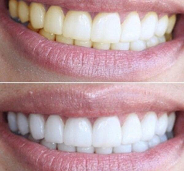 Отбеливания зубов - рейтинг 🌟🌟🌟🌟🌟 лучших организаций в саратове с отзывами клиентов, фото, адресами и телефонами на pro-gta5.ru 49 организаций и отзывов.