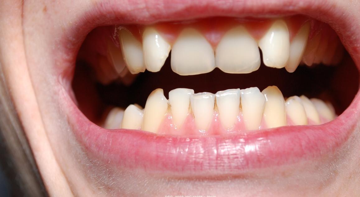 Капа Dental Trainer для выравнивания зубов. Капа для зубов  стоматологическая, детская Подробнее по ссылке d8d1086341f