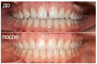 Капа Dental Trainer для выравнивания зубов. Капа для выравнивания прикуса    купить, цена Сайт 6038af9b740