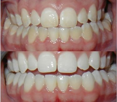 Стоимость отбеливания зубов разнится в зависимости от выбранной системы.