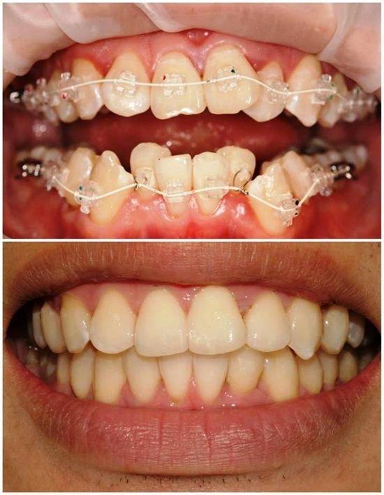 Капа Dental Trainer для выравнивания зубов. Капа для выравнивания прикуса    купить, цена Официальный 6b45772cac8