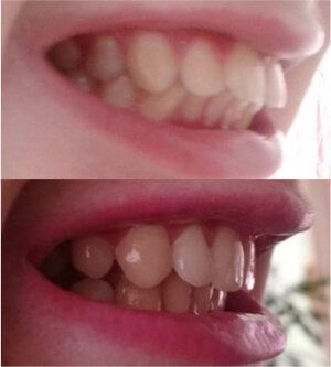 Капа Dental Trainer для выравнивания зубов в Забайкальске. Капы для выравнивания  зубов. 👄 Невидимые bf0d33ed828