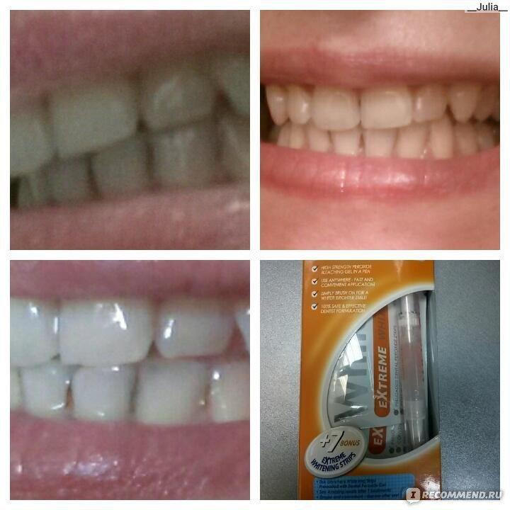 На нашем форуме вы найдете средние цены на отбеливание зубов (zoom, white карандаш, полоски, opalescence) и оцените эффективность отбеливания на представленных фотографиях.