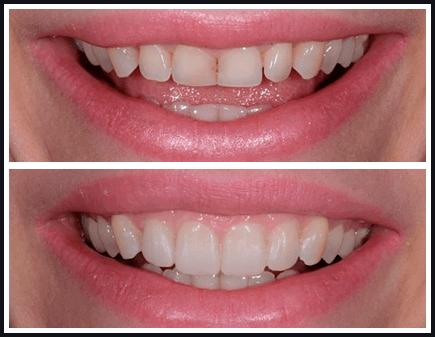 Капа Dental Trainer для выравнивания зубов. Капы для выравнивания зубов -  виды, стоимость, 7b8d5742df7