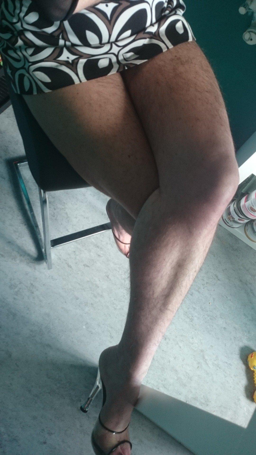 Хирургия женских фото волосатые ноги женщин отсасывает